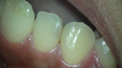 見えない虫歯の写真