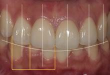 歯のバランス