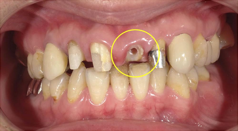 前歯の歯根の矯正治療