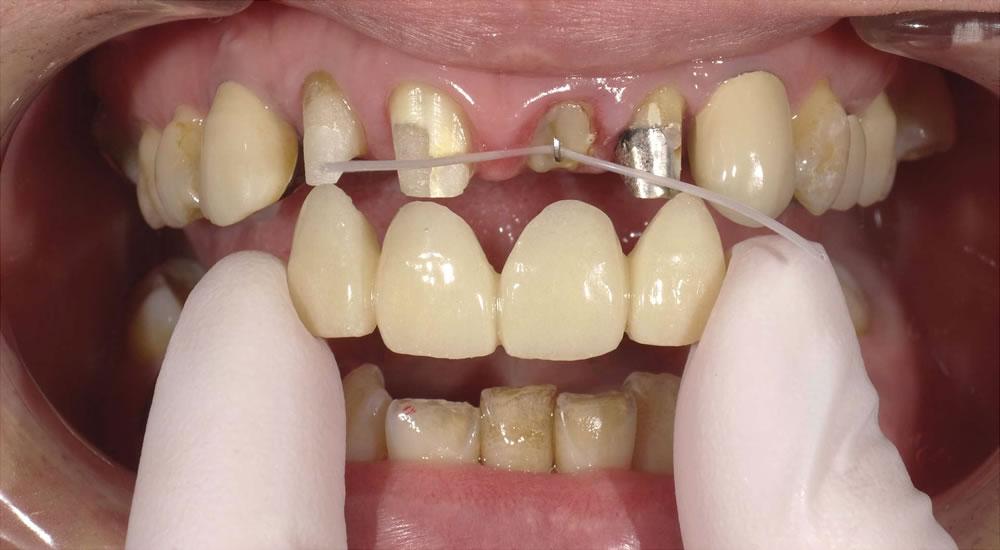 前歯の歯根の引き上げ