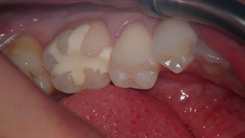 の た 歯 詰め物 が 取れ