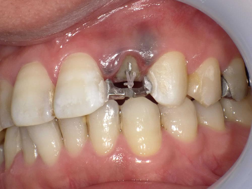 前歯のエクストリュージョン
