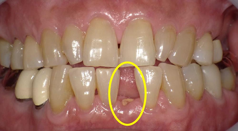 根っこしかない歯