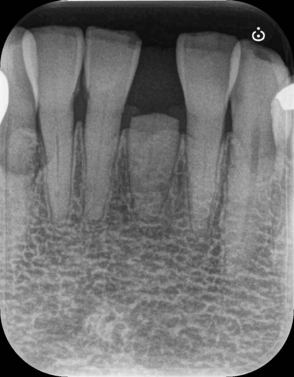 歯茎より下にある歯根