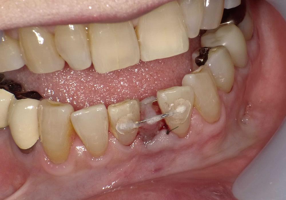 抜歯後即移植
