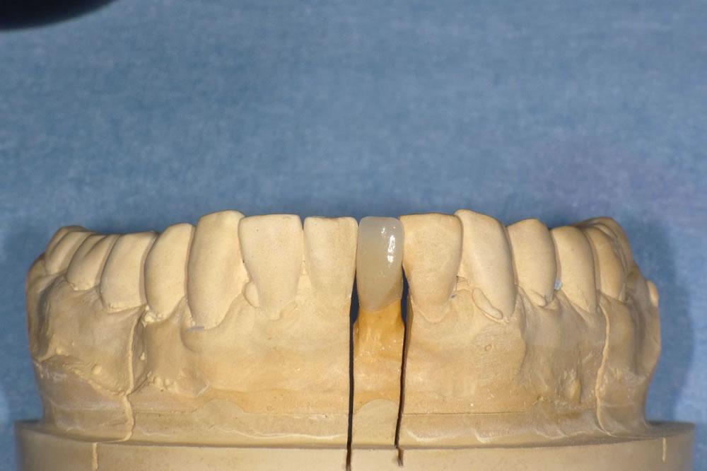 歯科技工士によるオールセラミッククラウン