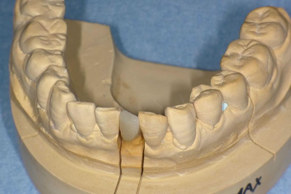前歯のオールセラミックの被せ物