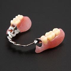 金属床ノンクラスプ義歯