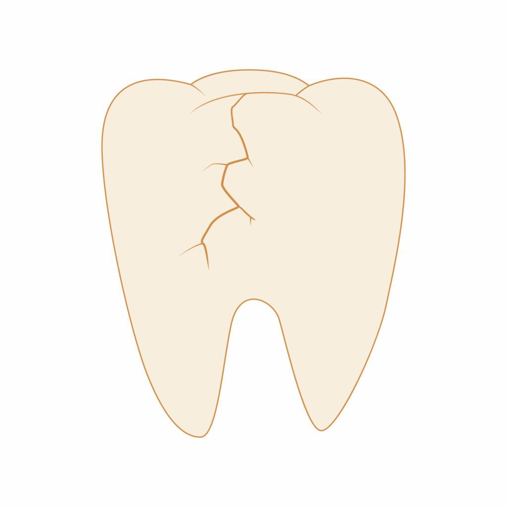 歯のヒビと根管治療